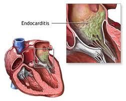 Pengobatan Infeksi Jantung